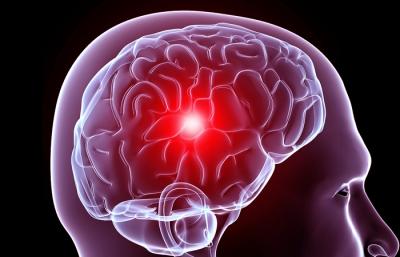 cicatrices y migraña terapia neural y medicina biológica