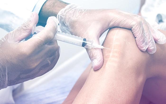 terapia neural alicante para el tratamiento cicatrices marga sirvent